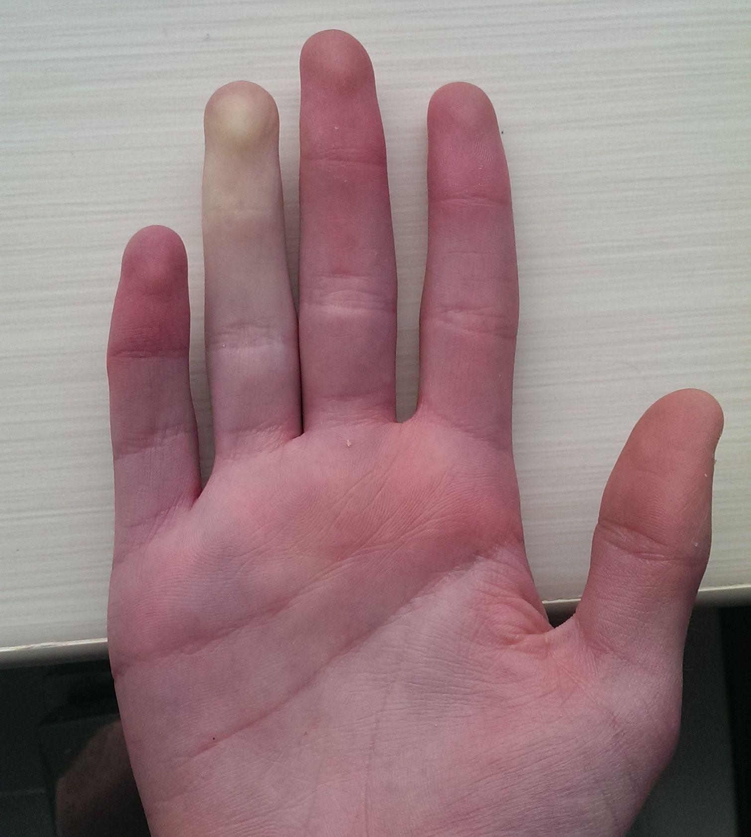 Drętwienie rąk objawem wielu poważnych chorób
